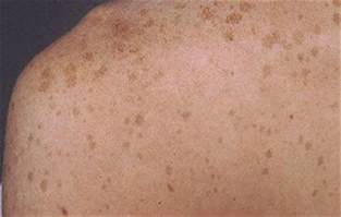 what do liver spots look like picture 15