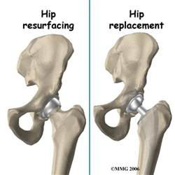 hip joint resurfacing performed in texas picture 9