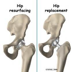 hip joint resurfacing performed in texas picture 5
