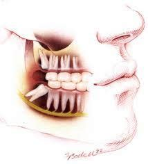 discount dental plans for wisdom teeth removal picture 6