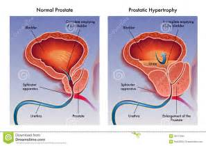 prostatic hypertrophy picture 1