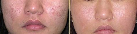 dermapen stretch marks before and after picture 6