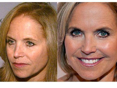 dr oz beau derma anti aging treatment picture 5