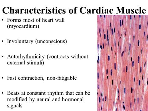 cardiac muscle is found in the wall of picture 7