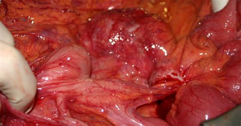 intestinal tract cancer symptoms picture 6