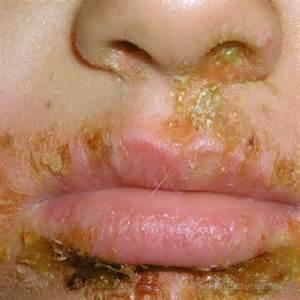 impetigo is herpes picture 7