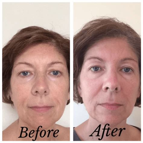 antiaging before after picture 7