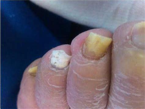 foot laser fungus denver picture 10
