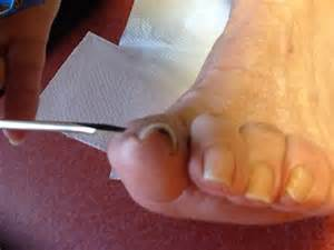 aging foot problems picture 15