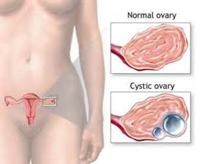 do ovarian cysts cause acne picture 5