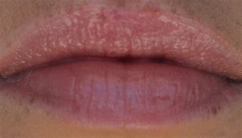 white spots on lips picture 18
