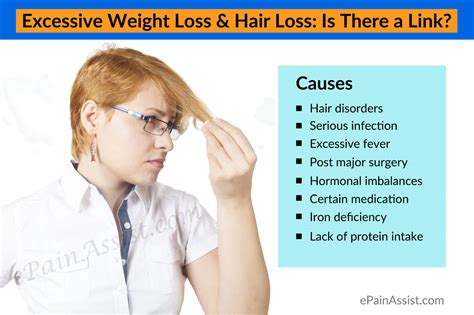 excessive hair loss and weight gain in cats picture 1