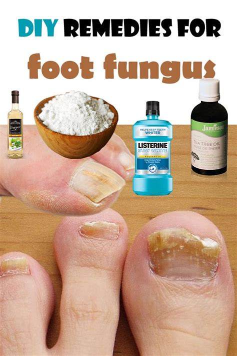 circulation and toenail fungus picture 9