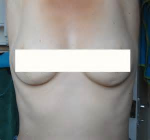 stretch mark vs dimple on breast picture 3