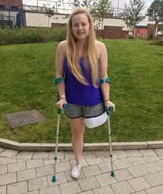 women crutches pain leg picture 14