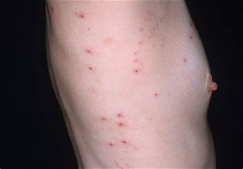 hives and stress picture 11