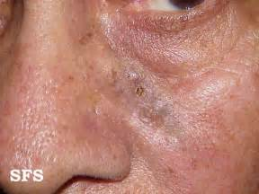 basal skin cancer symptoms picture 1