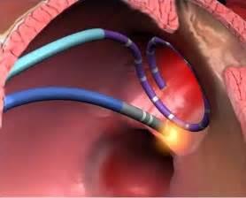 facet joint nerve eblasion picture 7