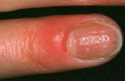 warts on fingers picture 9