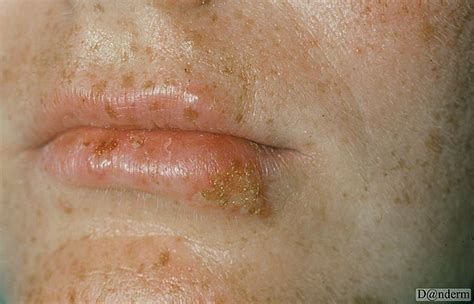 herpes symplex picture 9
