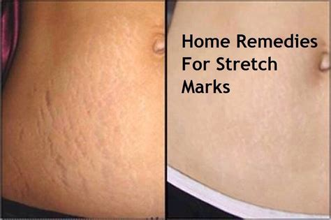 stretch mark cures picture 6