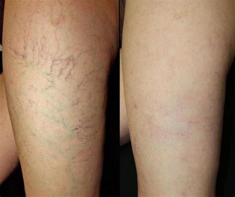 az vein skin rejuvenation picture 1