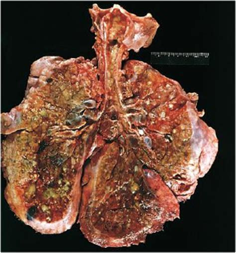 chronic liver disease - jaundice picture 15