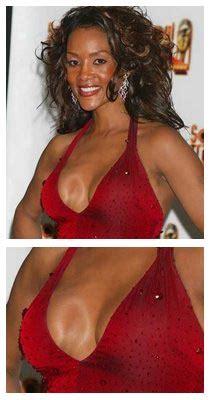 arlington breast augmentation picture 5