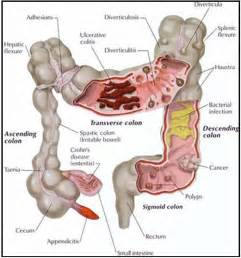 colon digestive picture 5