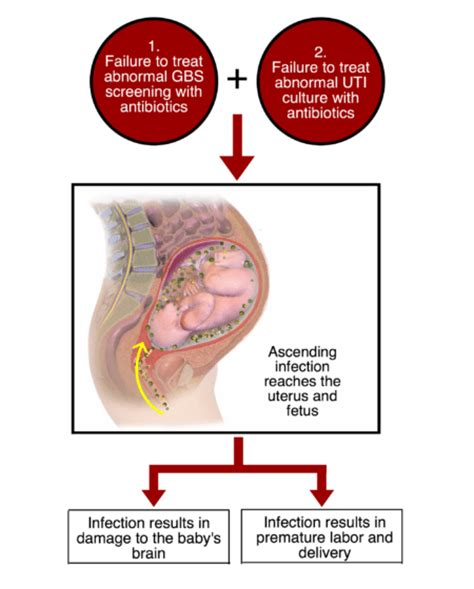 cleocin bladder infection picture 13