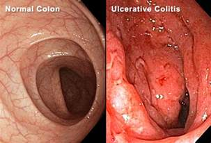 inflammation of the colon picture 7