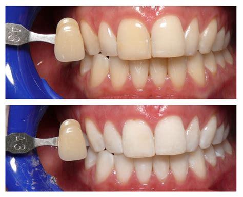 whiten teeth colorado picture 2
