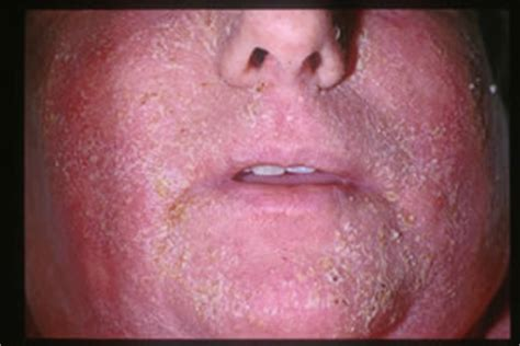 causes of body hair loss picture 18