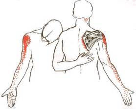arm shoulder muscle pain picture 11