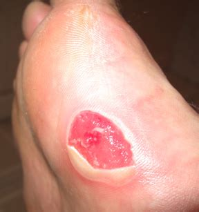 cantharidin wart removal picture 5