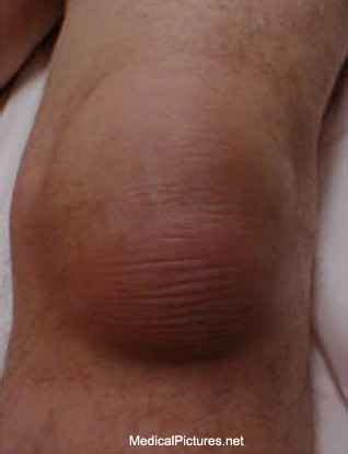ankle joint effusion picture 14