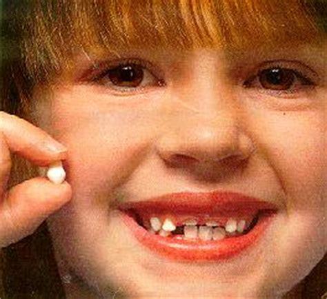 children's health losing teeth picture 7