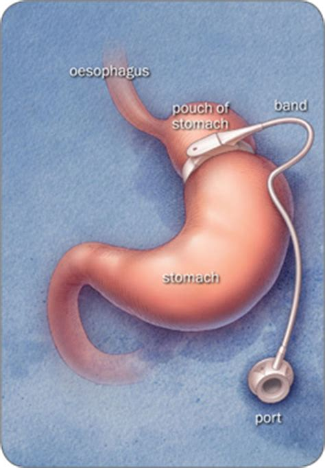 weight loss band surgery picture 9