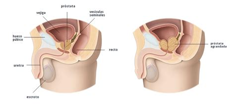full bladder on a bone scan picture 15