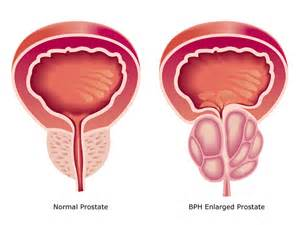 Stage8 in prostate cancer picture 22