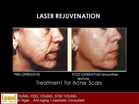 acne scar revision in encino picture 3
