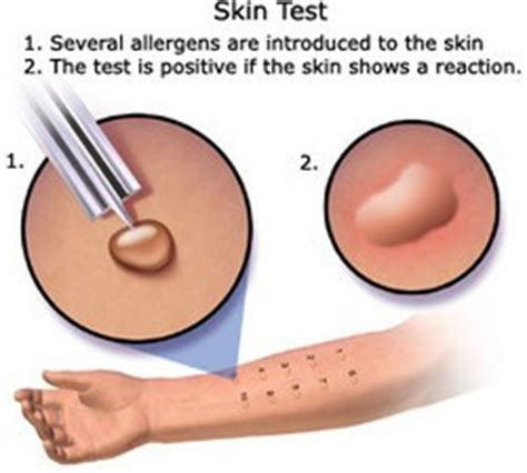 summary of your skin test picture 1