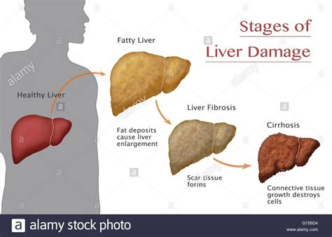 levels of liver failure picture 6