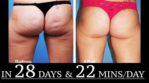 what works best for cellulite picture 2