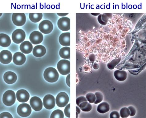 what causes uric acid picture 2