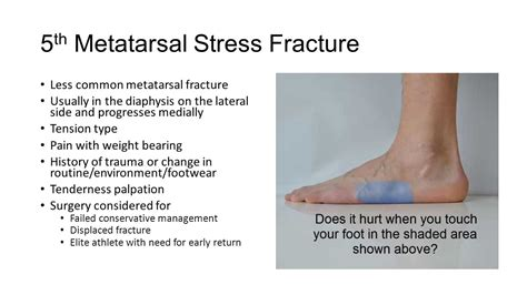 5th metatarsal pain diagnosis picture 3