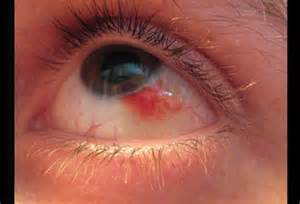 eye herpes photo picture 5