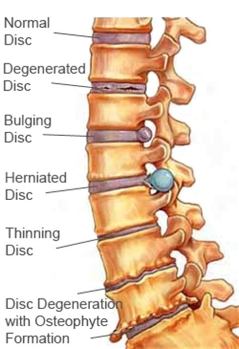 relief for back pain picture 5