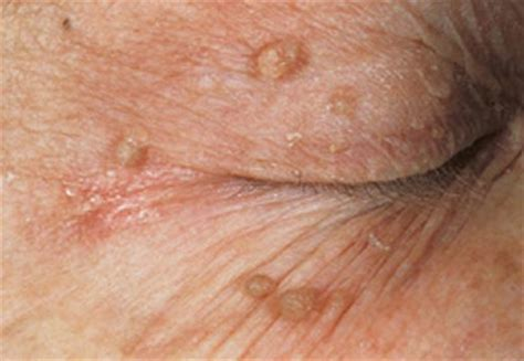 annal skin disorders picture 1