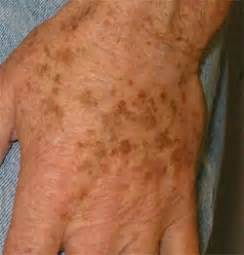 what do liver spots look like picture 2